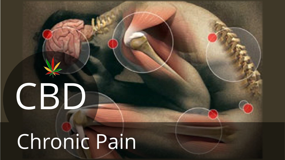 Fight Chronic Pain With CBD